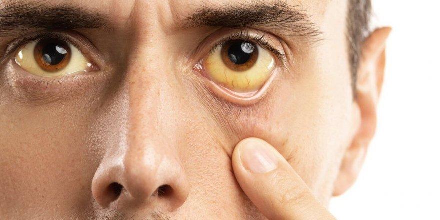 Hepatit A Nedir, Belirtileri Nelerdir, Korunma Yöntemleri Nelerdir?