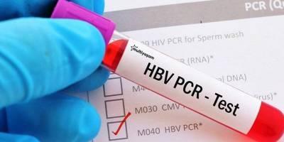 PCR Testi Nedir? PCR Testi Hakkında Merak Edilenler