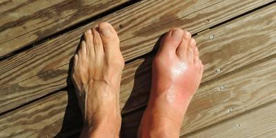 Gut Hastalığı Nedir Tedavisi Var Mı?